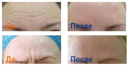 инъекции ботокса: фото до и после