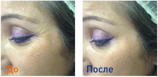 фото до уколов ботокса и после