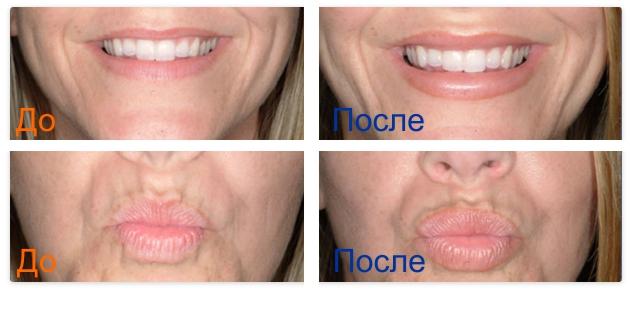 коррекция формы губ: фото до и после процедуры