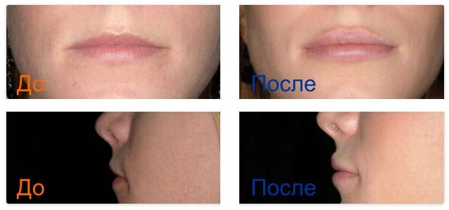 фото до и после коррекции губ