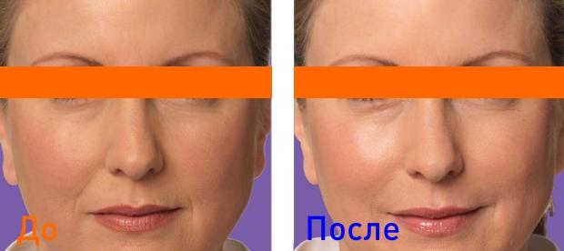 удаление носогубных складок гиалуроновой кислотой: фото до и после уколов
