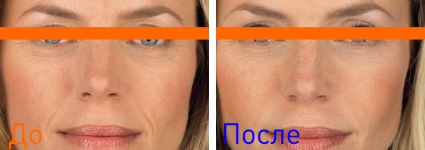 фото до и после процедуры удаления носогубных складок