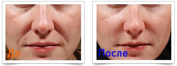 убрать носогубные склдаки: фотография до и после