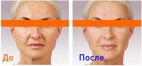 эффект после удаления носогубных сладок: фото до и после инъекций