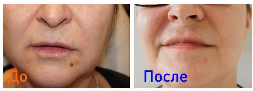 удаление новообразований лазером: фото до и после процедуры