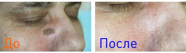 фото до и после удаления кератомы