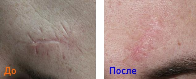 фото до и после удаления шрама на лице