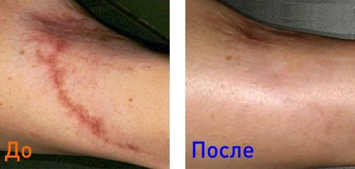 удаление шрамов: фото до и после процедуры