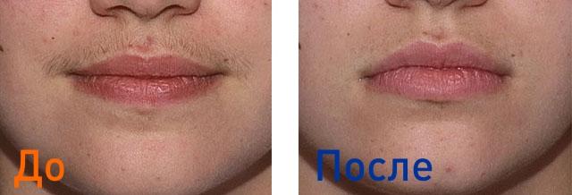 фотоэпиляция верхней губы: фото до и после