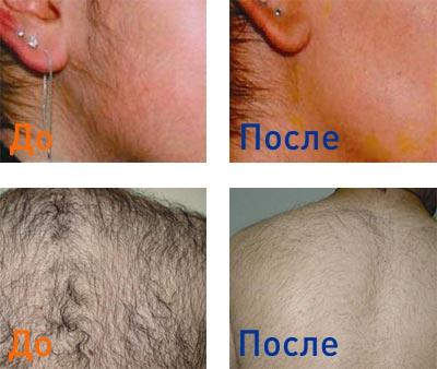 фотоэпиляция лица и спины: фотографии до и после