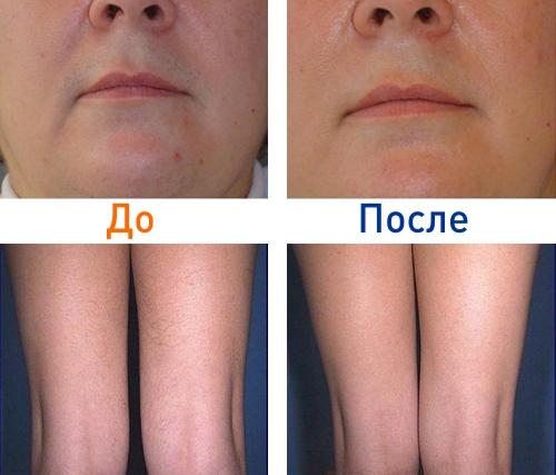фотоэпиляция: фото до и после процедуры