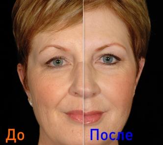 уколы гиалуроновой кислоты: фото до и после процедур
