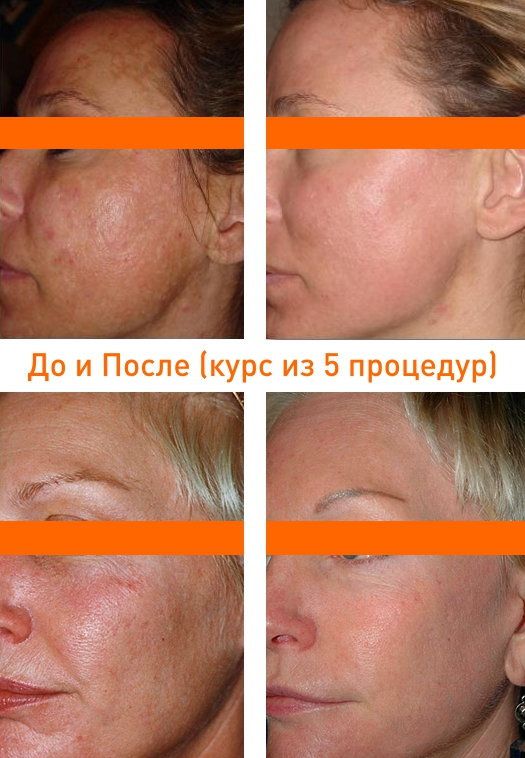 фото до и после курса процедур на лазере fraxel