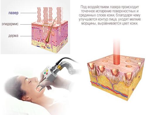 фото процедуры фракционного термолиза