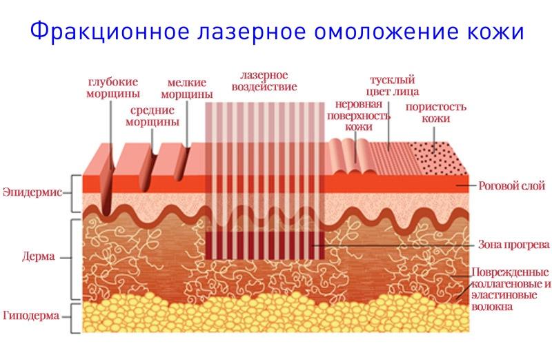 фото фракционного лазерного омоложения кожи