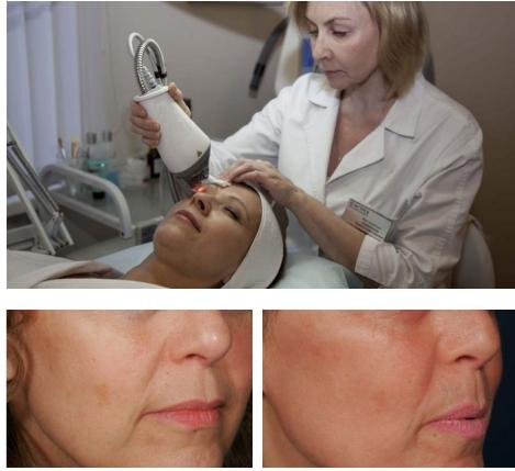 фото до и после лазерного термолиза кожи