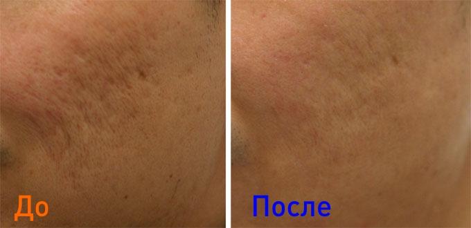 фото до и после использования фракционного лазера