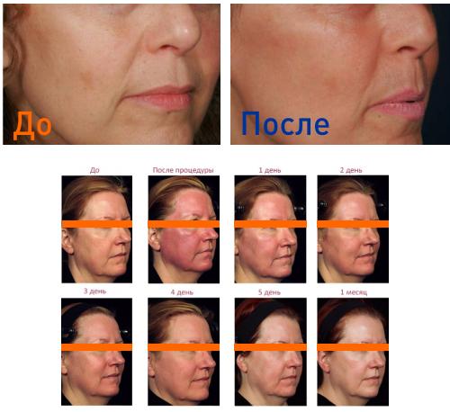 фото до и после фракционного термолиза
