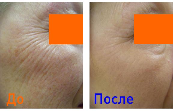 фото до и после дермального оптического термолиза