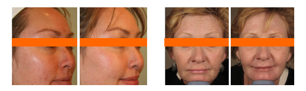 фото до и после процедуры лазерного лифтинга