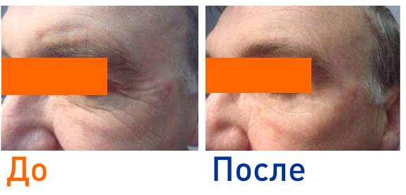 фото до и после СО2 омоложения