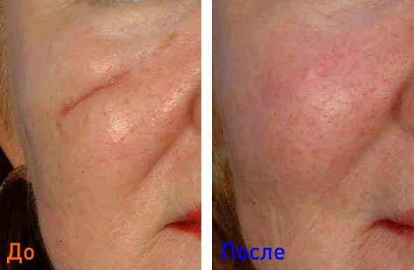 фото до и после уколов коллагена