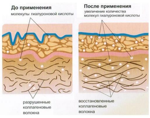 фото коллагеновых инъекций