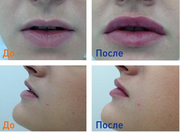 фото до и после уколов surgiderm в губы
