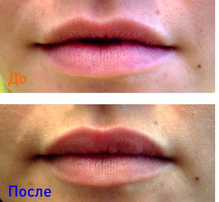 фото до и после инъекций препарата surgiderm