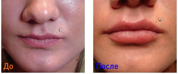 фото до и после уколов Juvedrerm