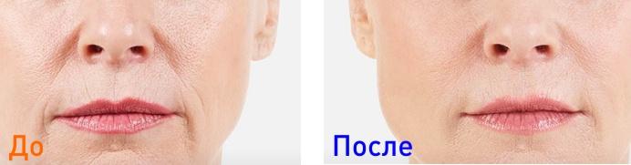 juvederm - фото до и после курса инъекций