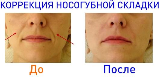 фото до и после инъекций Stylage