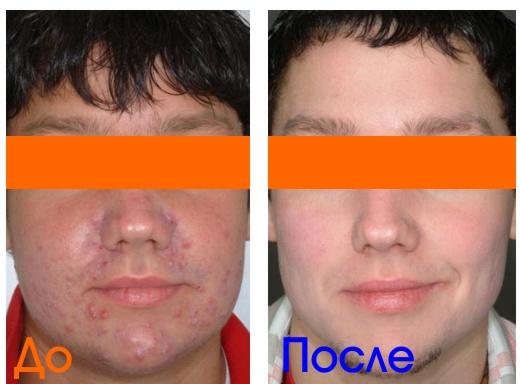 фото после процедур мужской косметологии