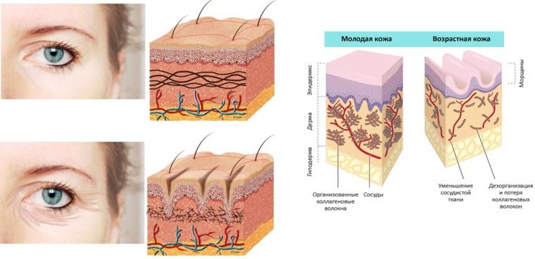 фото инъекций омоложения кожи