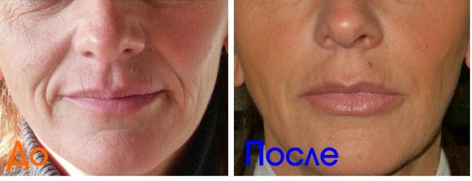 фото до и после инъекций омоложения кожи лица