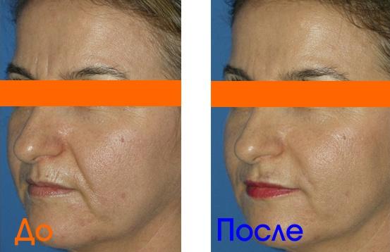 фото уколов омоложения до и после процедуры