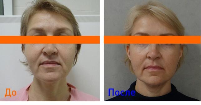 фото после векторного лифтинга лица