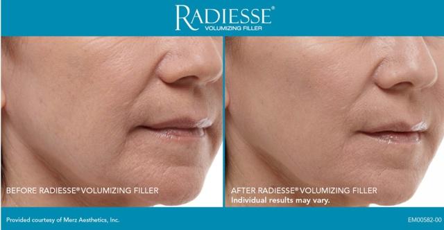 фото до и после инъекций радиесс