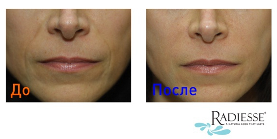 фото до и после инъекций radiesse