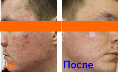 фото после плазмотерапии кожи лица