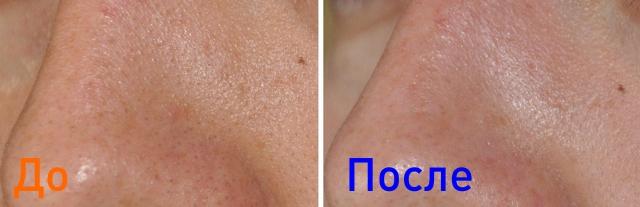 до и после комбинированной чистки лица