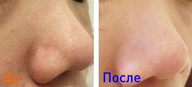 фото до и после чистки кожи лица