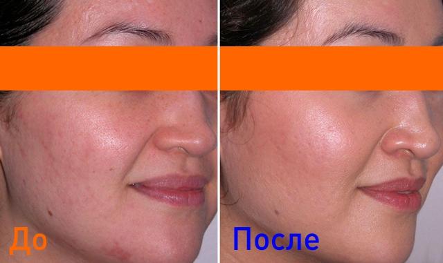 поесле комбинированной чистки кожи лица