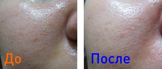до и после удаления черных точек на лице