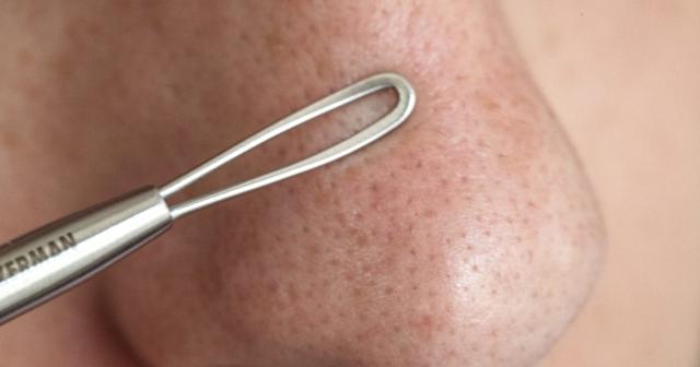 процедура удаления черных точек на лице
