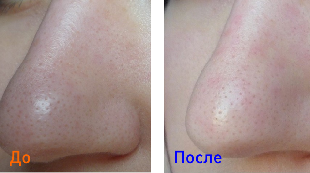после удаления черных точек на коже лица