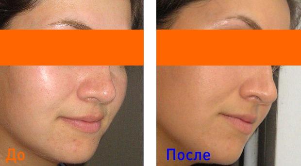 фото до и после лечения жирной кожи лица