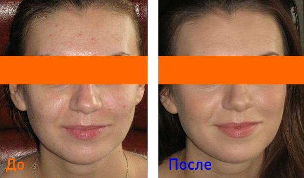 процедуры для лечения жирной кожи лица
