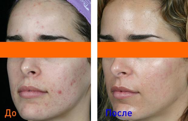 эффект от лечения жирной кожи лица