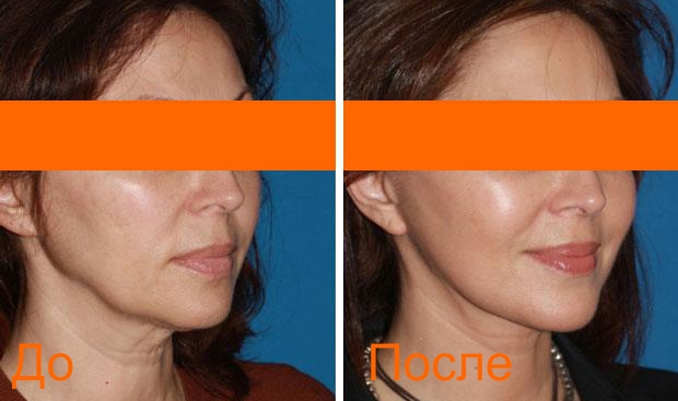 фото до и после процедуры смас лифтинга